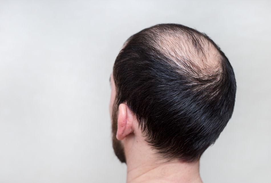 Kreisrunder Haarausfall Hilfsmittel Mann