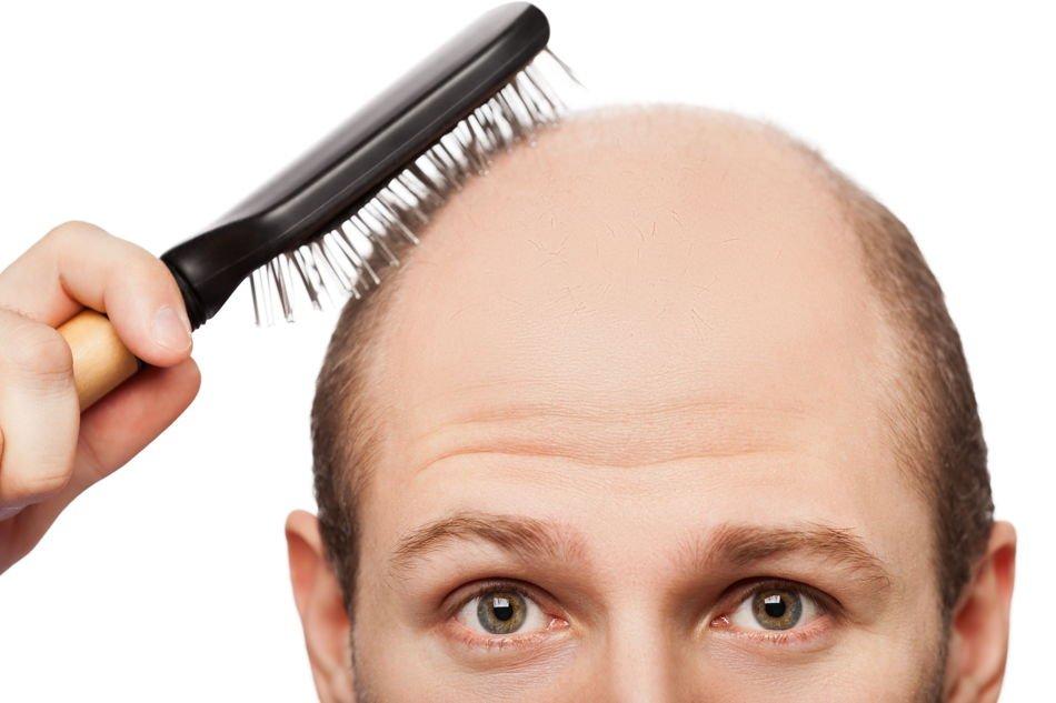 Glatze rasieren - So geht's