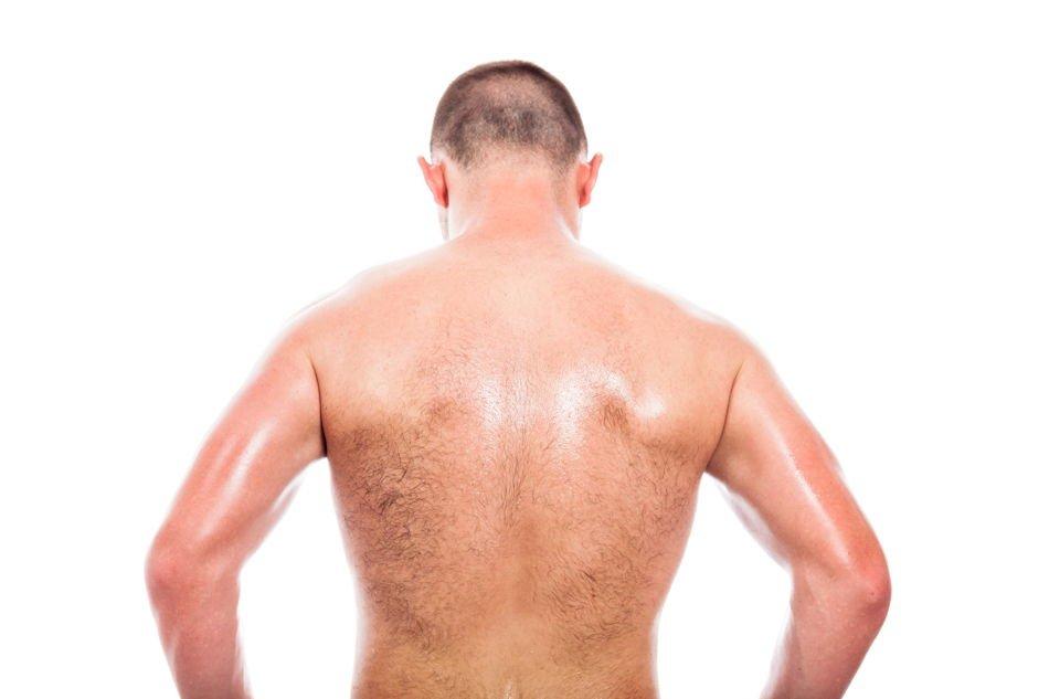 Haarentfernung am Rücken für Männer